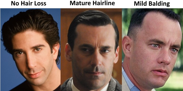 Male Pattern Baldness: Early Warning Signs
