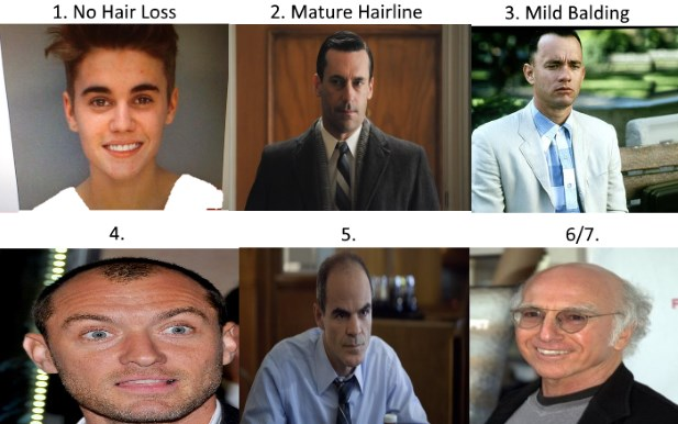 Norwood Scale Asses Your Hair Loss With Pics Amp Celebrity