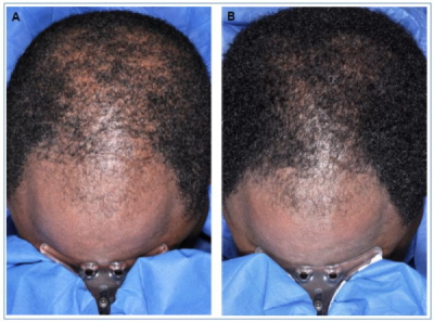 Minoxidil Vs Male Pattern Baldness A Scientific Review