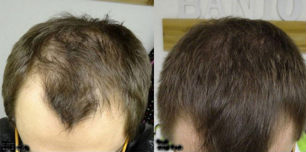 All The Cool Kids Are Using Ru58841 For Hair Loss Research Should You