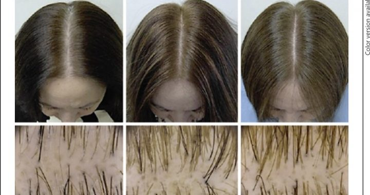 Female Hair Loss Is Complicated Here Are 12 Proven Ways To Treat It